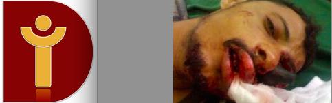 Detainees in Southern Yemen